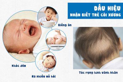 dấu hiệu trẻ còi xương